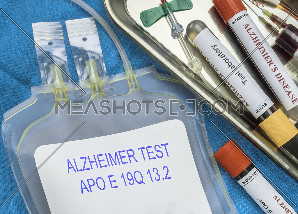 Test of Alzheimer disease through extraction of blood, Recent discovery makes possible to discover with 16 years in advance this disease, conceptual image