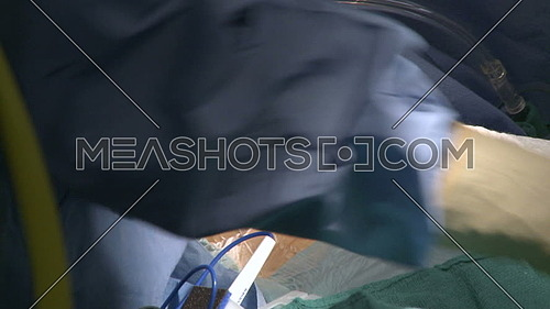 Close shot for a Doctor's hand makes first incision during Heart Surgery