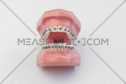 Open artificial human jaw with perfect teeth and braces