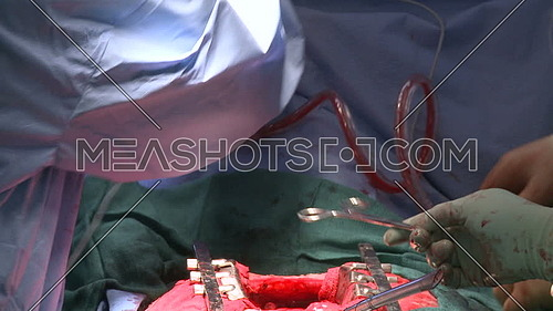 Close shot for doctor hand using cell-salvage machine during open heart surgery