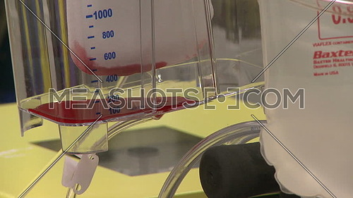 Close shot for the cell saver while blood drop into a container