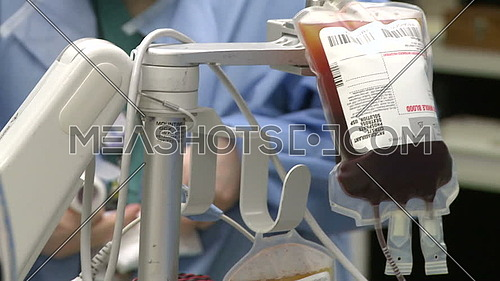 close shot for IV bag of anticoagulant filled with blood during surgery