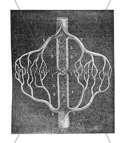 Figure schematic explaining the collateral circulation that develops after the ligation of an artery, vintage engraved illustration. Usual Medicine Dictionary - Paul Labarthe - 1885.