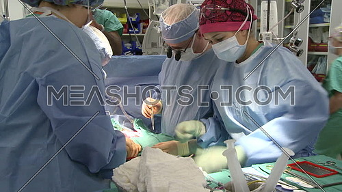 medium shot for surgical team working on surgery