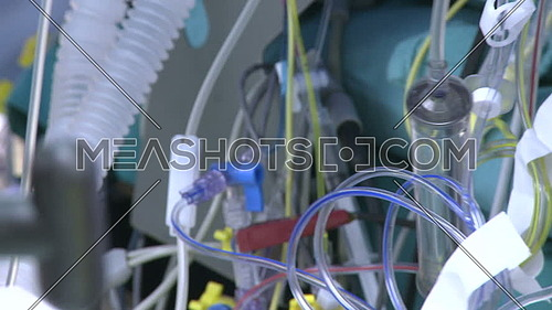 Close Up shot for An array of medical tubes and wires