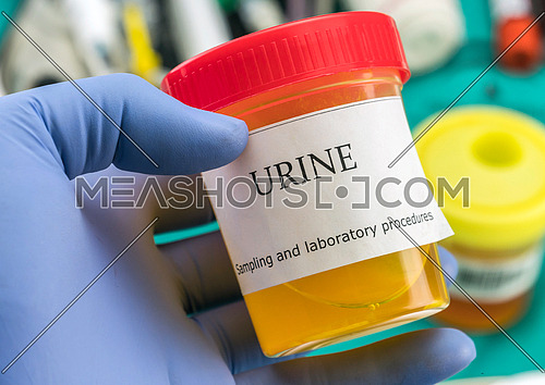 Doctor working with urine samples in a clinical laboratory