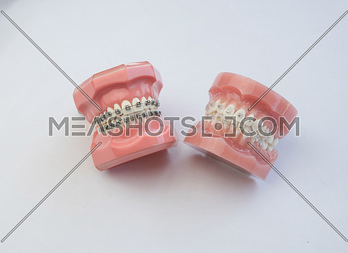 Model of human jaw with wire braces attacheg  Dental and orthodo