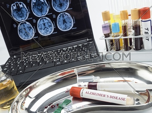 Blood sample to investigate remedy against Alzheimer disease, conceptual image