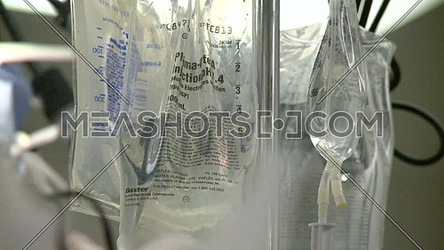 Close up shot for IV drip bags and surgeon's head in foreground