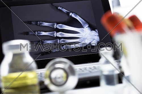 Hand radiography in hospital, conceptual image