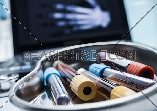 Several vials and blood sample in a metal tray, conceptual image