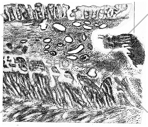 Section of the intestinal wall at the edge of typhoid ulcer, beginning of third week of the disease, vintage engraved illustration.