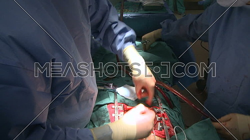 Close up shot for Doctor hand stitching internal incision during open heart surgery