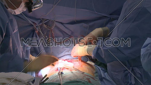 Medium shot for doctor putting gauze into chest incision during open heart surgery